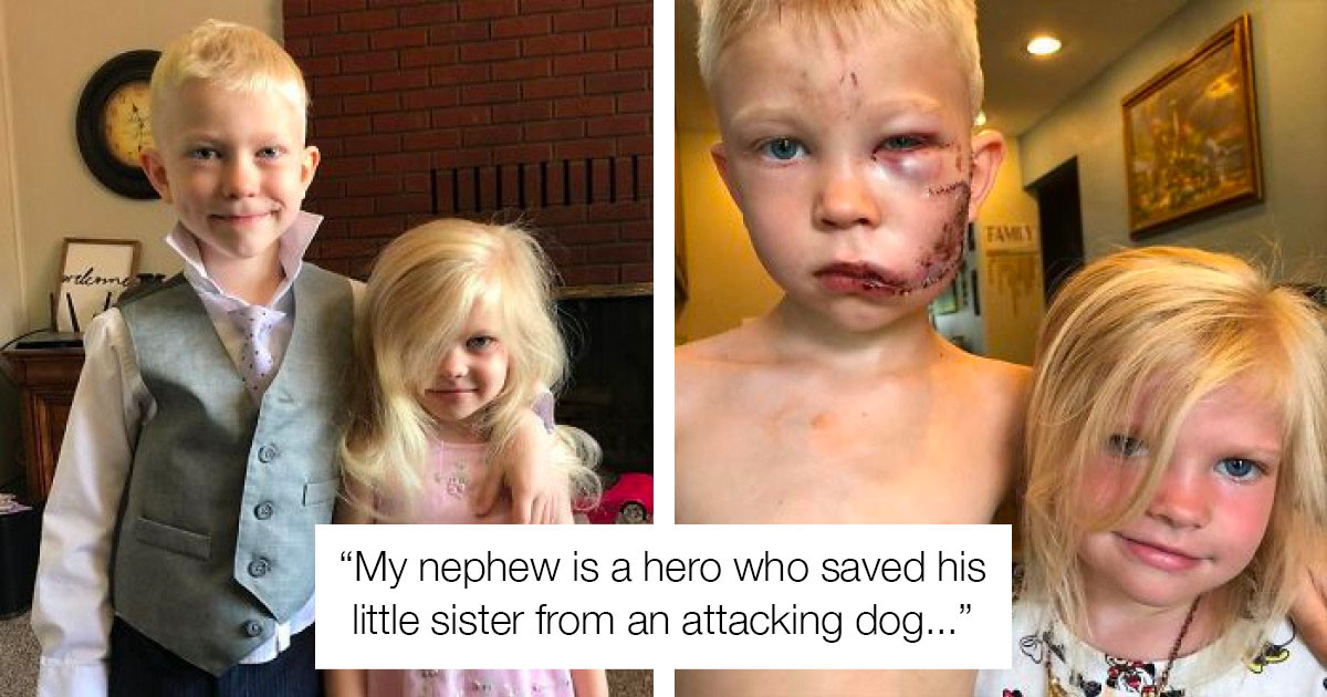 6-Year-Old Protects His Younger Sister From A Vicious Dog Attack And Gets 90 Stitches On His Face