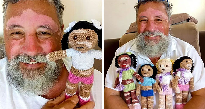 21. A man suffering from vitiligo creates dolls to make kids with the same condition feel better.